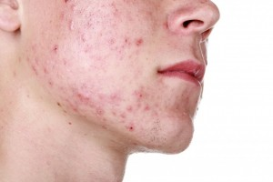 Comedonal, popular and pustular acne
