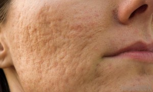 Acne scarring (cheeks)