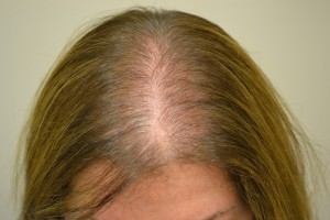 Androgenetic alopecia (female)
